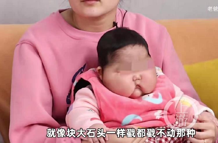 """有博主爆料称,5个月大孩子使用抑菌霜后出现""""大头娃娃""""现象:发育迟缓、多毛、脸肿大等。图片来源/视频截图"""