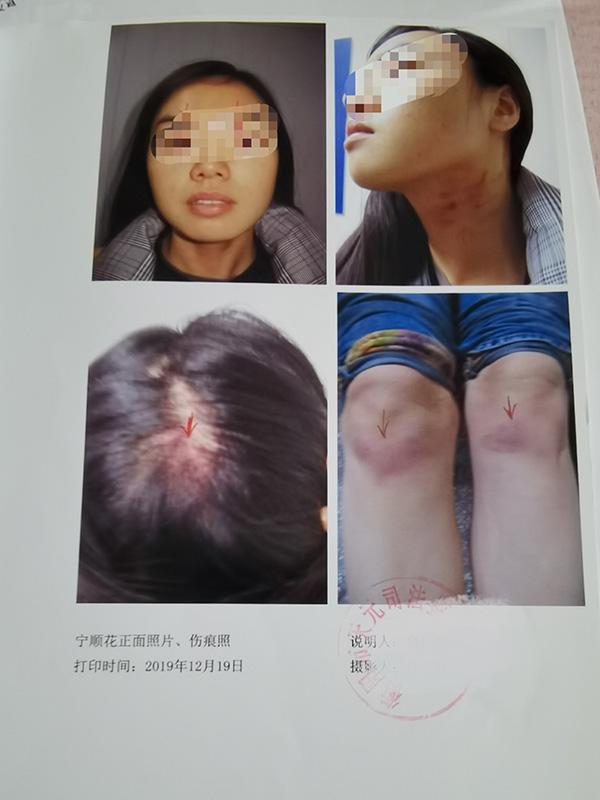 宁顺花提供的司法鉴定意见书,她说此前被陈定华殴打受伤。
