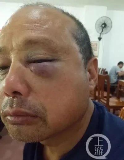 2017年7月15日,宁顺花父亲宁明忠被陈定华殴打致左眼红肿。