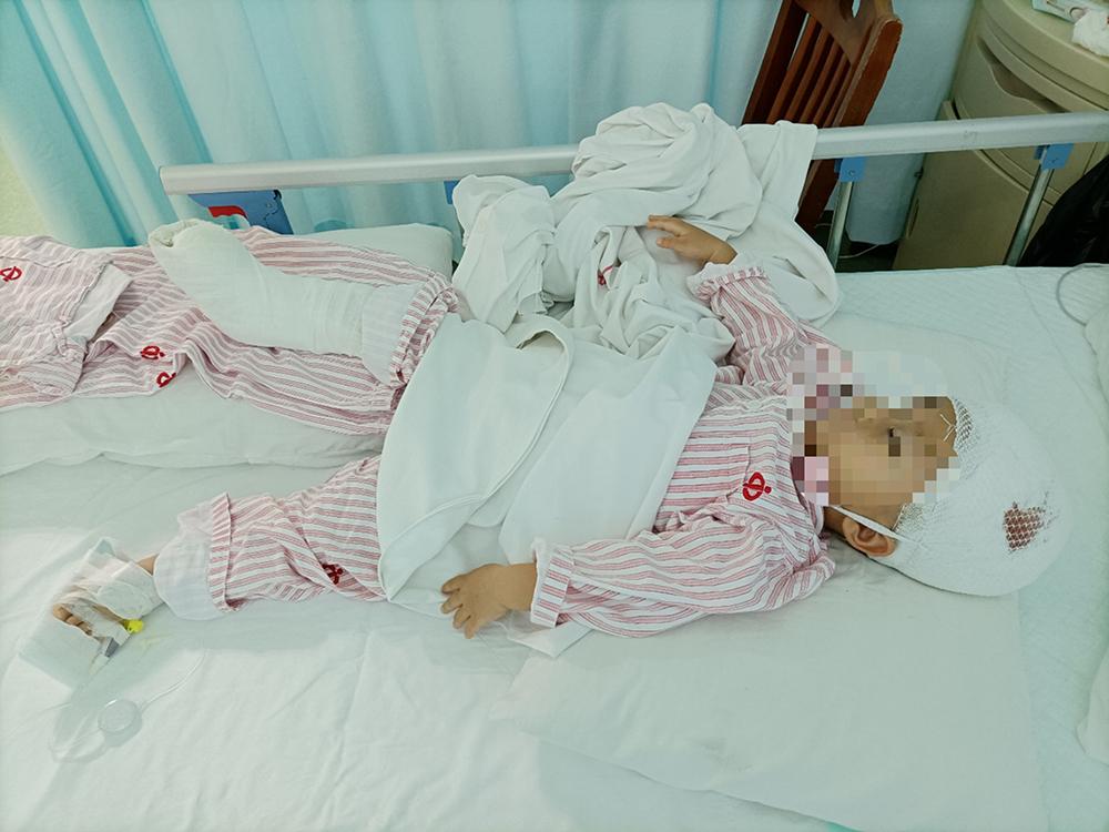 男童被商场扶梯夹伤致3个脚趾截肢,商场:扶梯无质量问题
