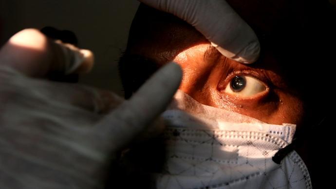 早安·世界 印度报告一万多例毛霉菌病病例