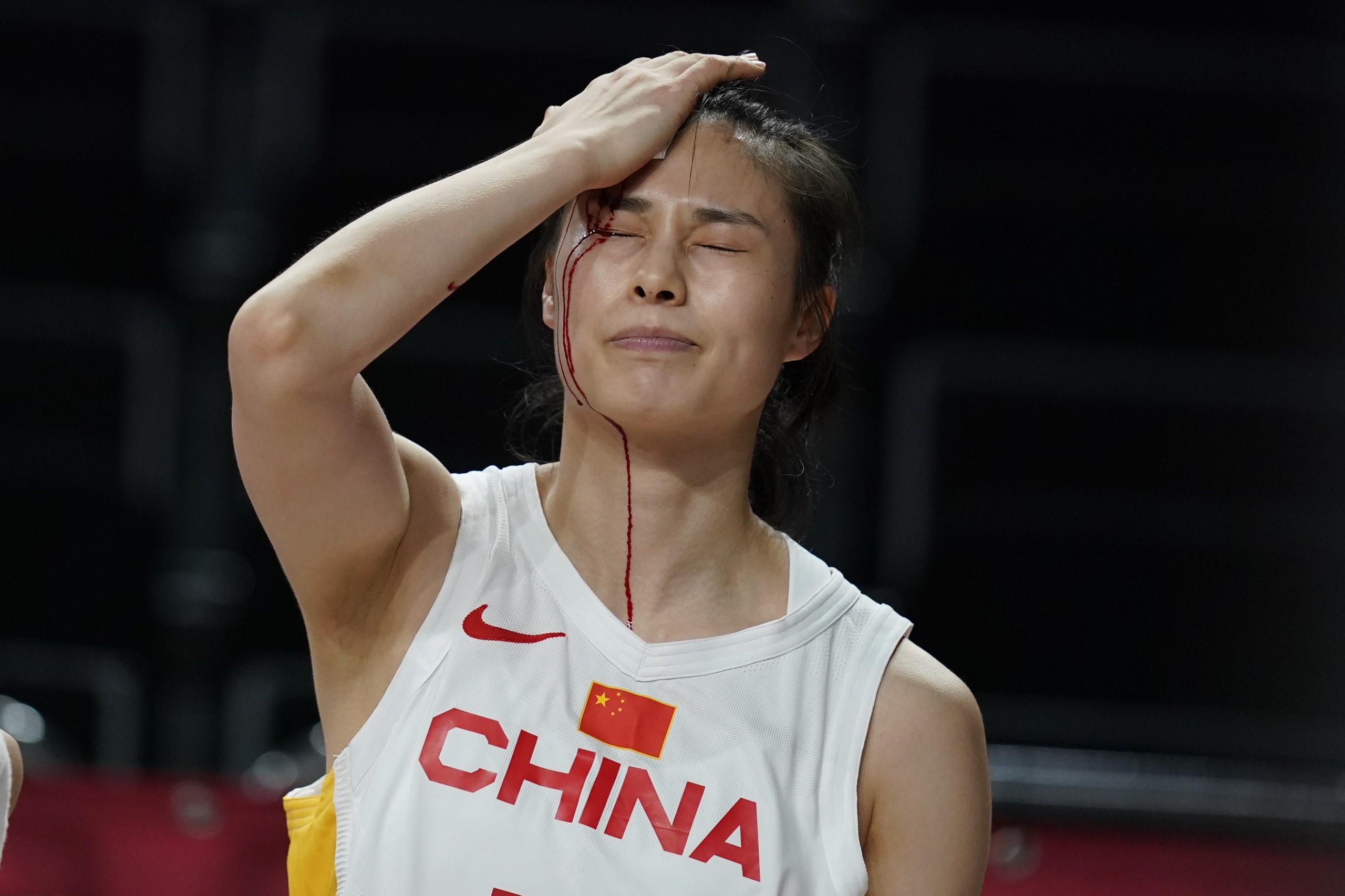 王思雨血流当场。