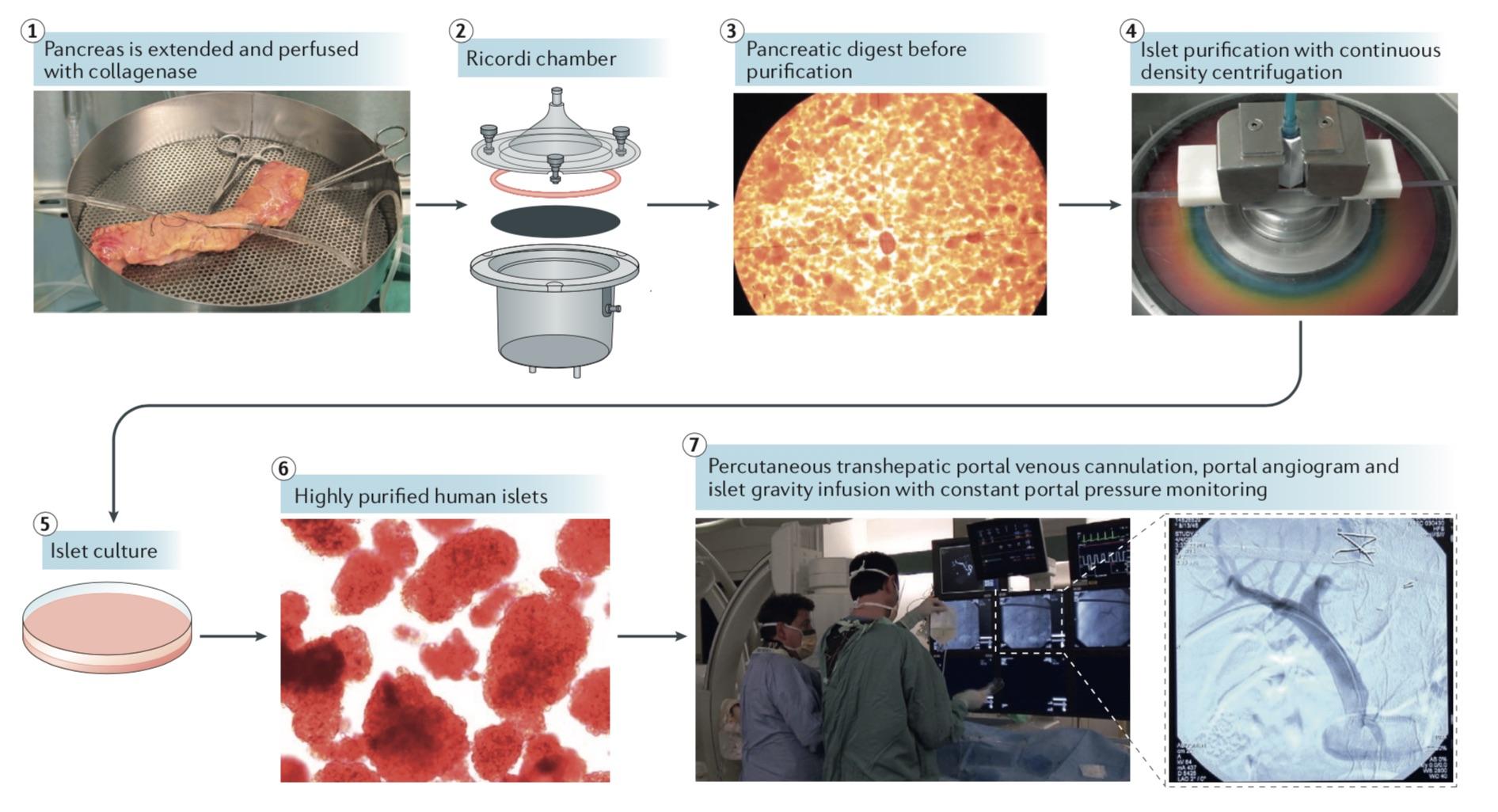 胰島分離至胰島移植全流程概圖。圖片來源:James Shapiro等人論文