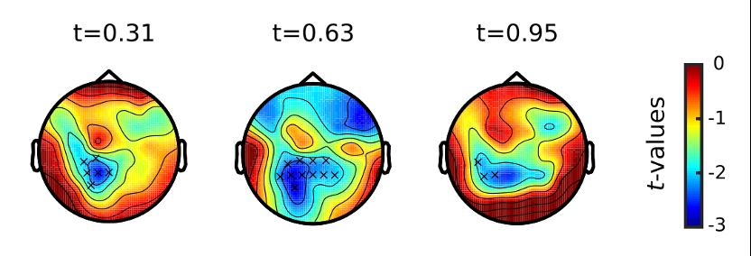 决策期间凝视类型之间的头皮地形。 考虑到来自两个参与者组的数据,地形图显示了凝视条件(回避凝视-相互凝视)之间引发的 alpha 振荡(8 至 12 Hz)差异的 t 值图。 统计上显着的集群由x标记。 条件之间的差异是通过基于非参数聚类的排列测试发现的。t值定义为两个条件的估计平均值之间的差异与其标准误差的比值。相对于所展示的凝视的建立(每320毫秒),在t = 0.31 s到t=0.95s的时间范围内描绘了地形。