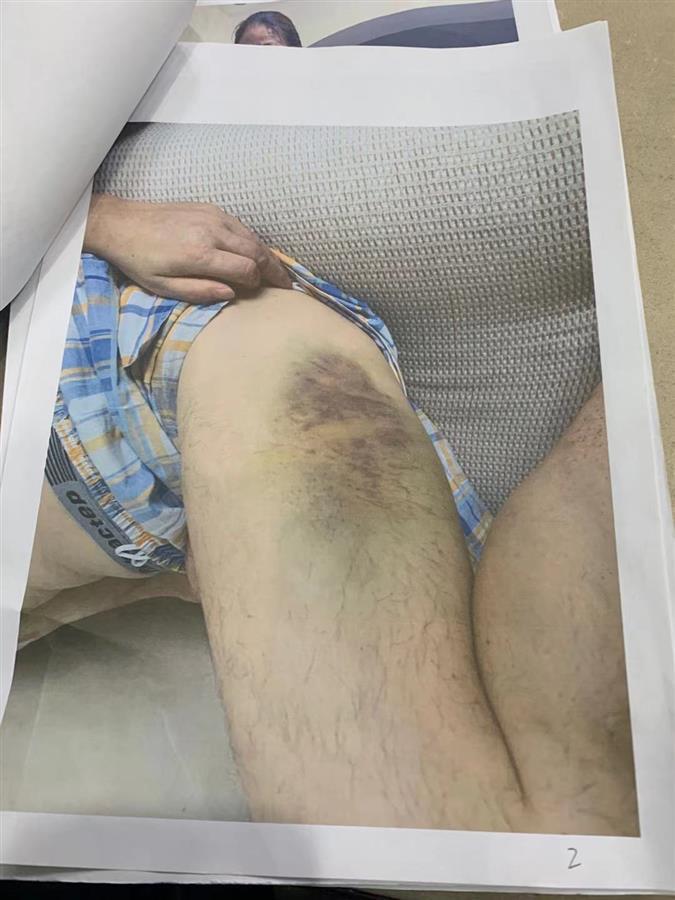 王女士父亲大腿被打淤青