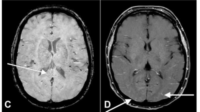 新研究:新冠重症患者中超七成出现谵妄,多个因素造成