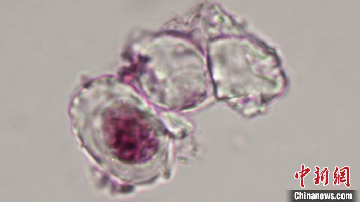尾羽龙腿骨软骨细胞的显微照片。其中一个细胞中还有经过染色而显示出的细胞核,以及暗色的细丝状染色质。 Alida Bailleul 供图