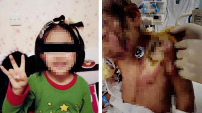 抚顺6岁女童受虐案明开庭,其父:孩子心理辅导一年仍做噩梦