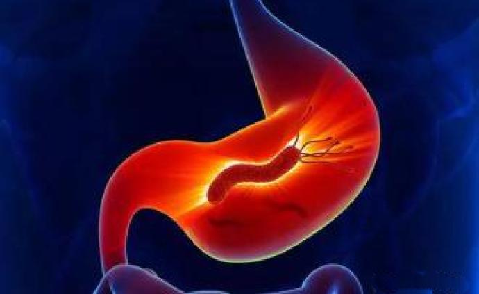 """舌尖上也要防""""疫"""",幽門螺旋桿菌可能導致這些疾病"""