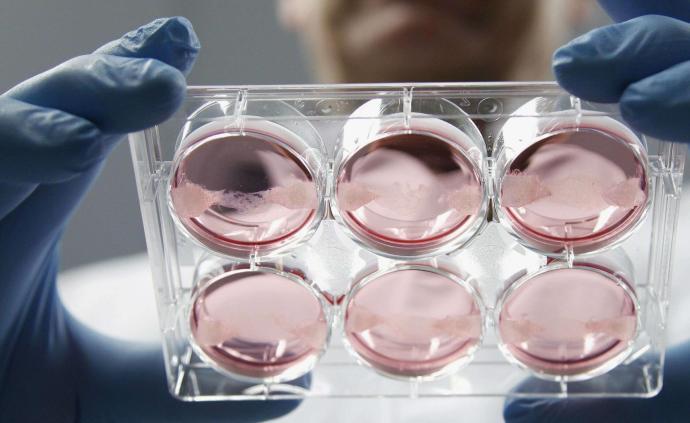 以色列針對新冠病毒開發的疫苗原型開始動物試驗