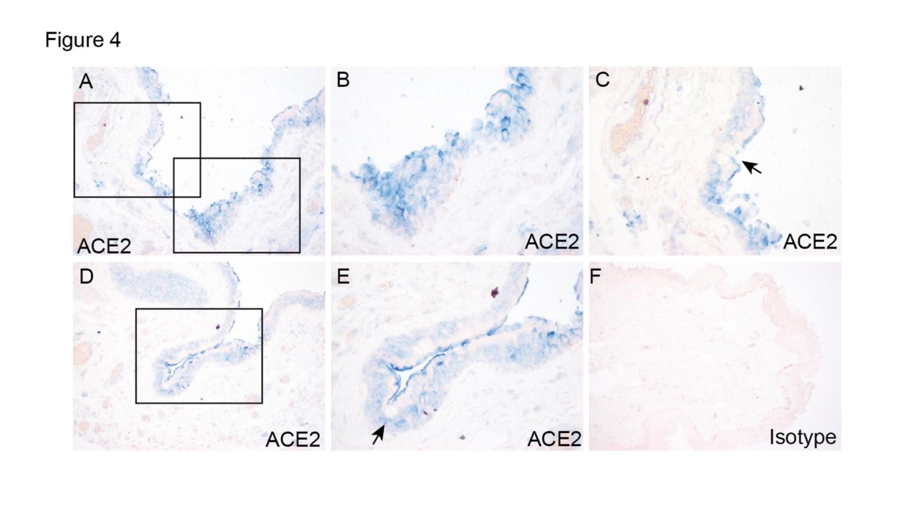图3:结膜手术标本的ACE2外达及定位。(A)框中的区域在(B)和(C)以较高的放大倍数表现。(D)框中的区域在(E)以较高的放大倍数表现。箭头外示杯状细胞(C,E)。