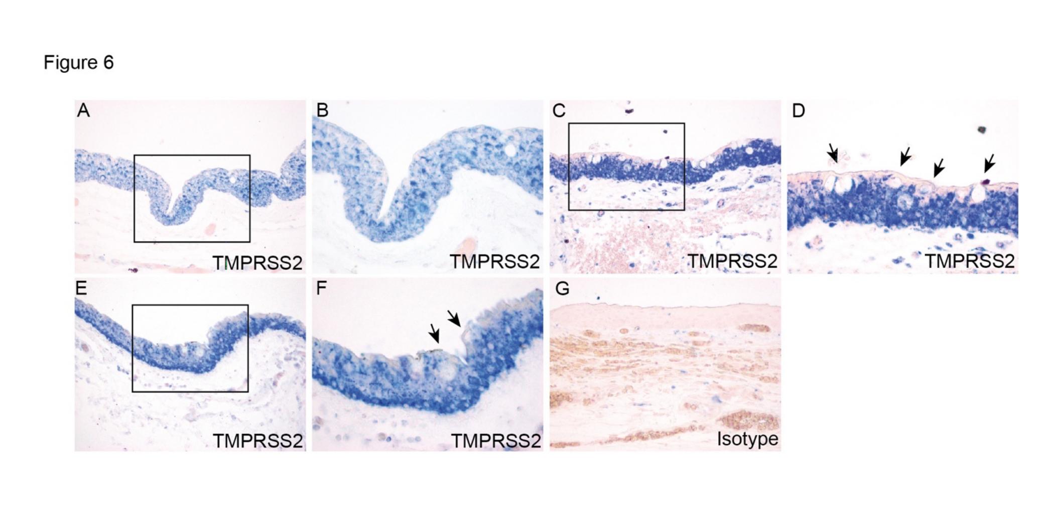 图5:物化后眼球结膜的TMPRSS2外达及定位。图中展现了2个眼球的结膜(A-B,C-D,E-F)。箭头外示杯状细胞(D,F)。