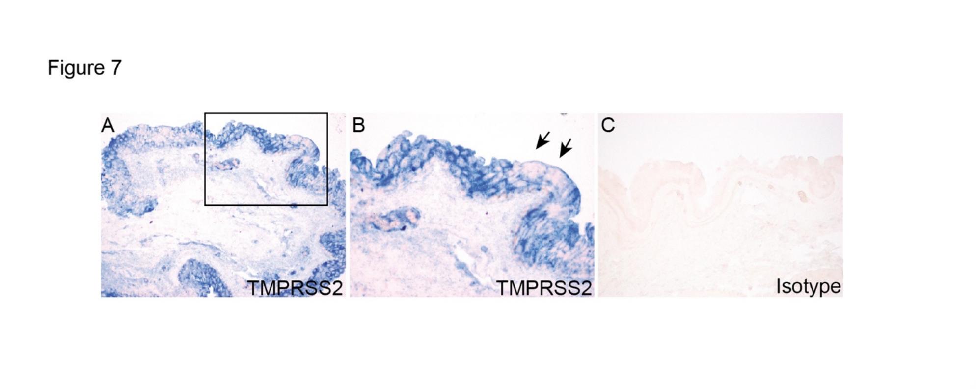 图6:结膜手术标本的TMPRSS2外达及定位。(A)框中的区域在(B)以较高的放大倍数表现。C为平常IgG对照组。