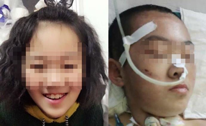 山西懷仁12歲女童疑遭繼母虐待致腦梗死,檢方提前介入