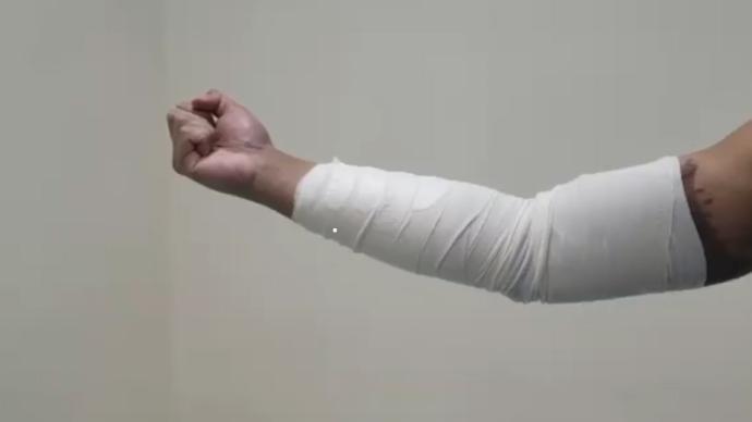 视频丨港警露遭暴徒强酸灼伤手臂,力挺香港国安法