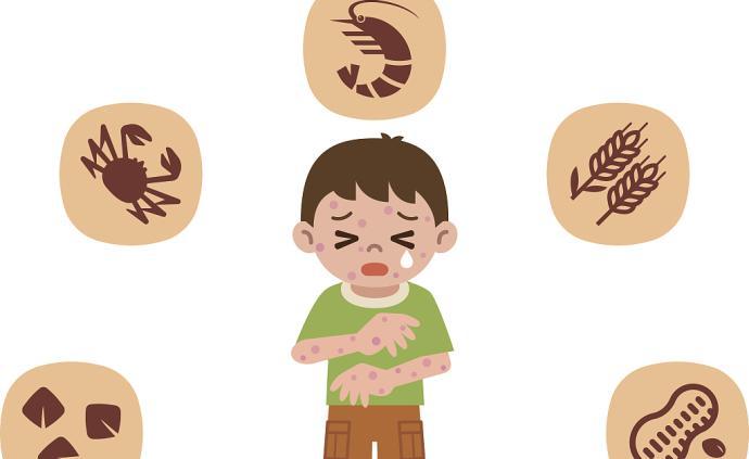 兒童過敏越來越普遍,家長如何科學對付過敏