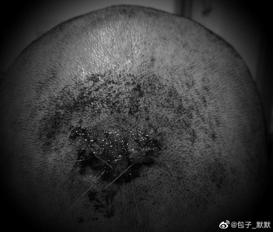 小默头上的伤疤。受访者供图