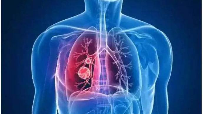 """人類""""器官庫""""或將擴充:肺損傷有望通過豬循環系統修復"""