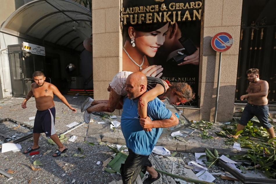 一名男子扛着一名受伤女孩穿过满是玻璃碎片的街道。