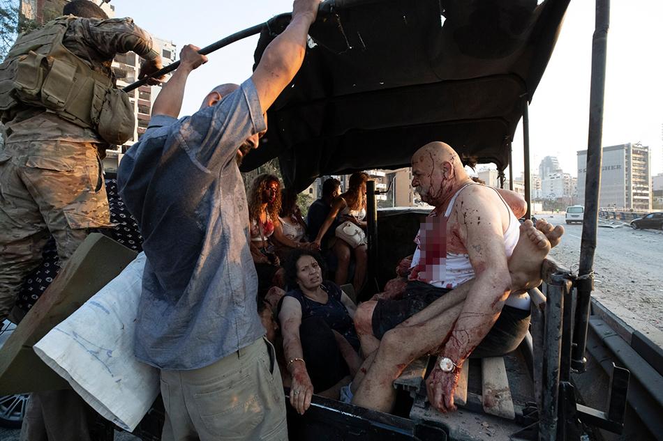 在一辆挤满伤者的车上,伤者们绝望无助的眼神,被鲜血染红的衣服,无不诉说着爆炸的惨烈。