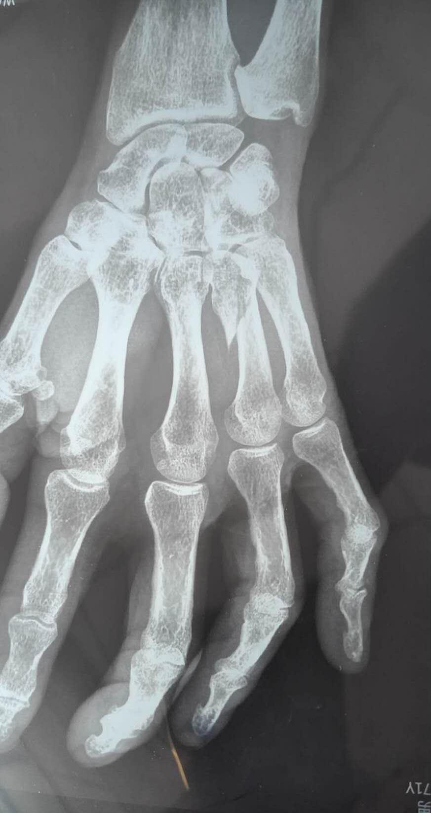 CT显示伤者的左手第4掌骨完全性骨折。受访者供图