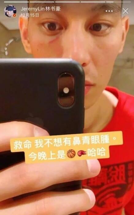 林书豪此前晒图,自己鼻青脸肿,像是参加的拳击比赛。