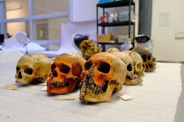 牛津大学皮特里弗斯博物馆收藏的人类遗骸