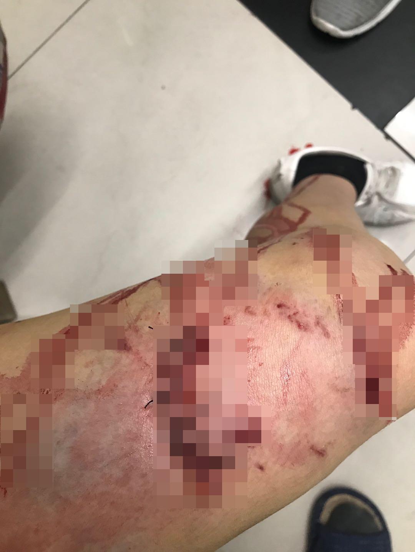 烈性犬撕咬致陈女士右腿多处受伤。