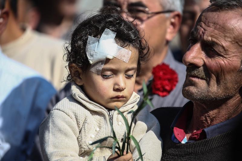 2020年10月12日,阿塞拜疆占贾,在亚美尼亚军队所谓的远程导弹袭击后,一名受伤的三岁女孩Meryem。
