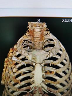 CT影像照片