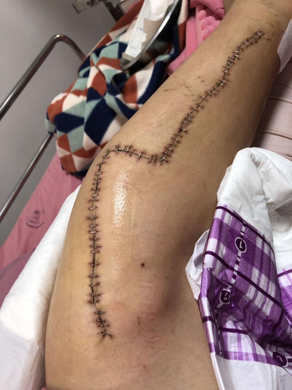 手術后傷口縫合痕跡。